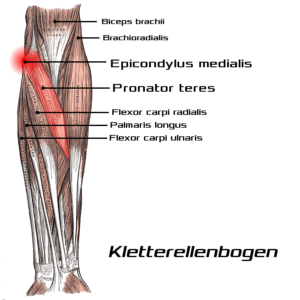 Kletterellenbogen - Golferellenbogen - Epicondylus medialis - Pronator teres